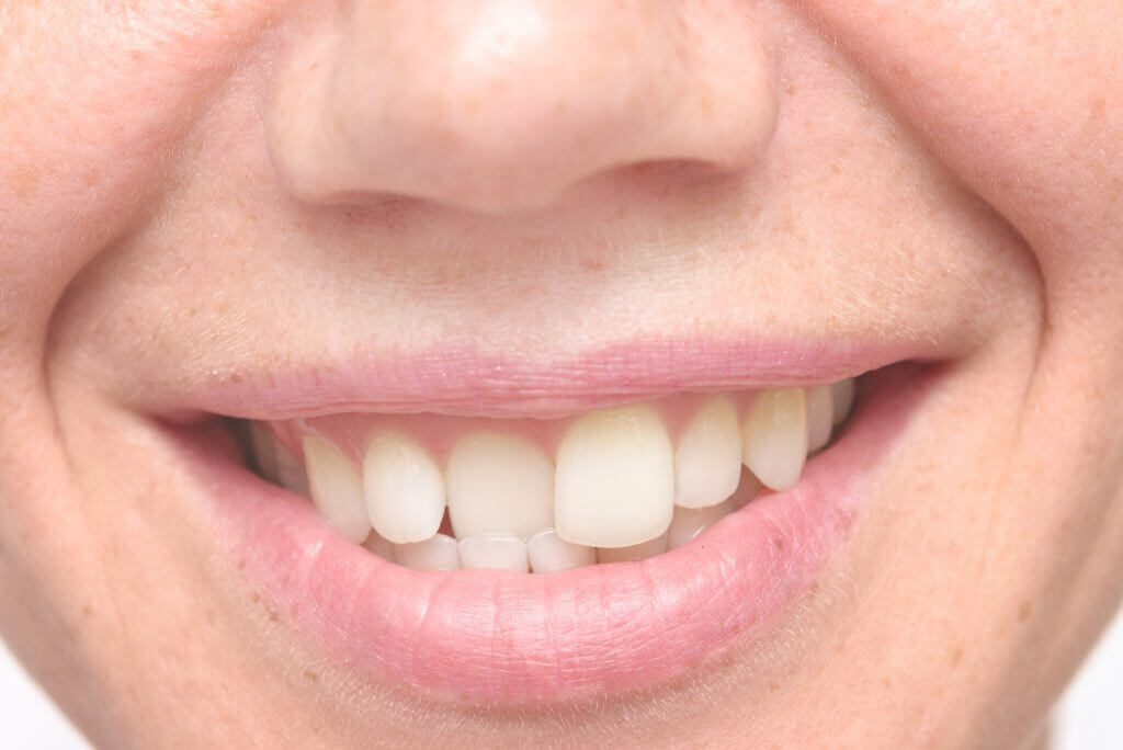 Causes and Treatment of Crooked Teeth