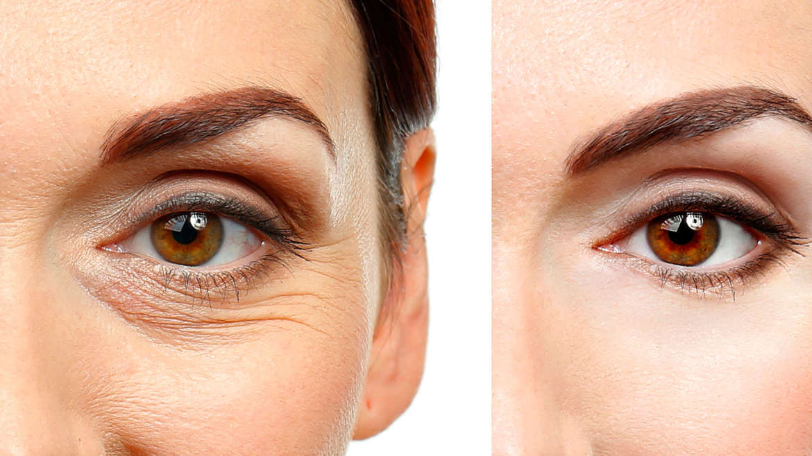 What is Blepharoplasty and What Are its Benefits?